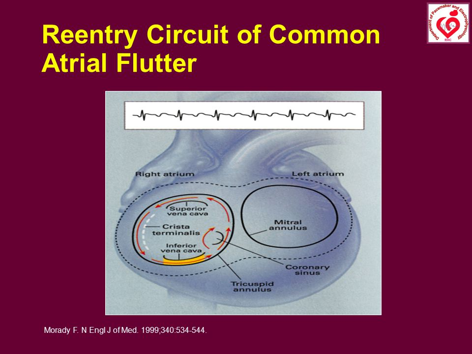 Reentry Circuit of Common Atrial Flutter