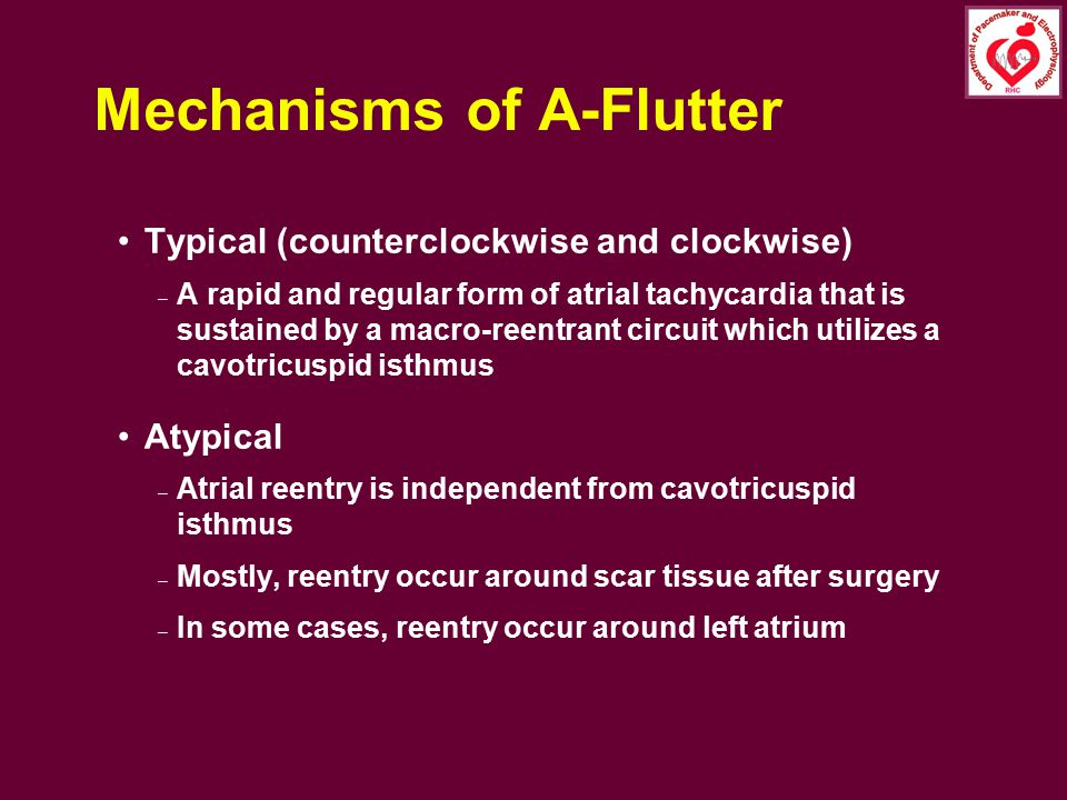 Mechanisms of A-Flutter