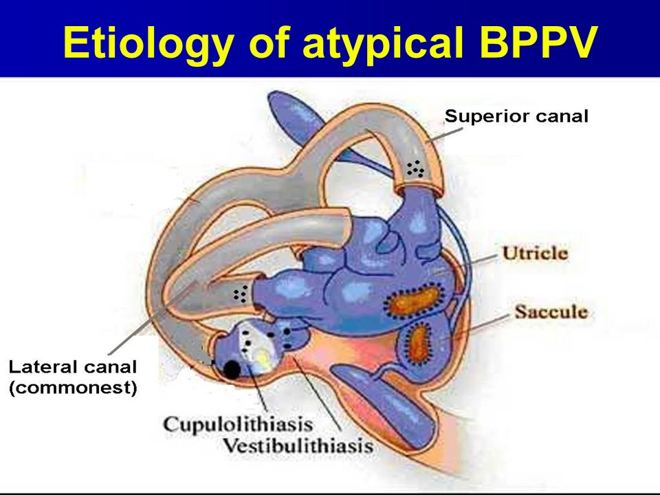 Etiology of atypical BPPV
