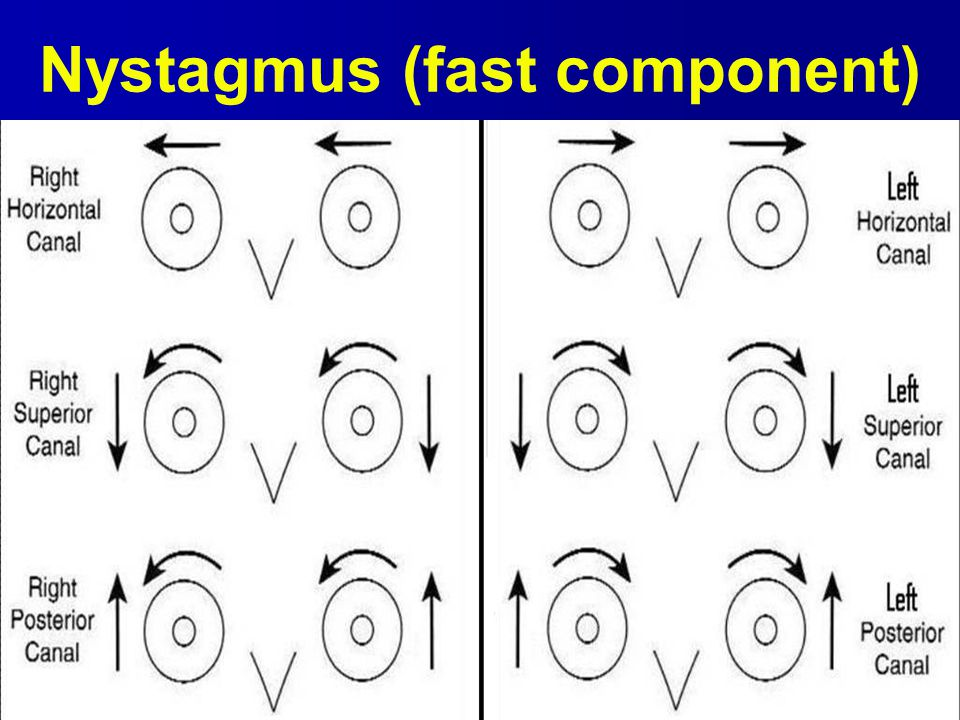 Nystagmus (fast component)