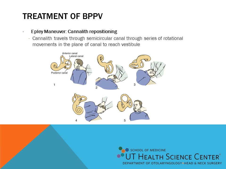 Treatment of BPPV Epley Maneuver: Cannalith repositioning