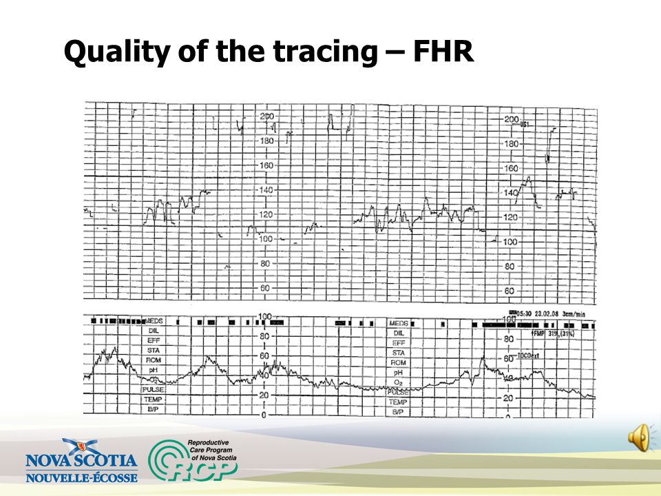 Quality of the tracing – FHR