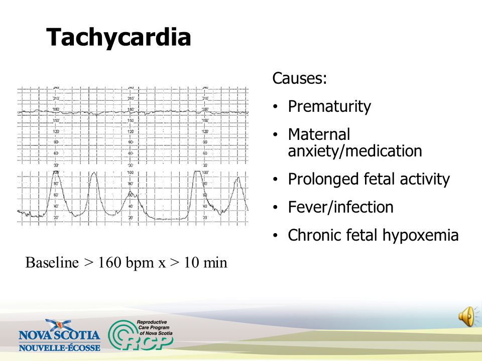 Tachycardia Causes: Prematurity Maternal anxiety/medication