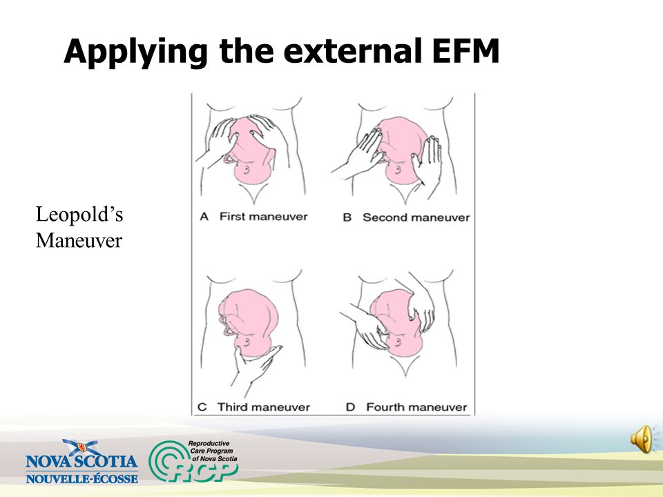 Applying the external EFM