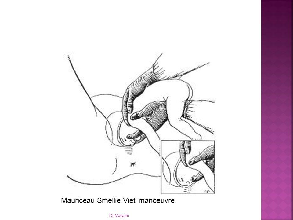 Mauriceau-Smellie-Viet manoeuvre