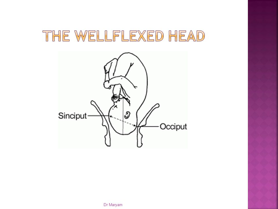 The Wellflexed head Dr Maryam