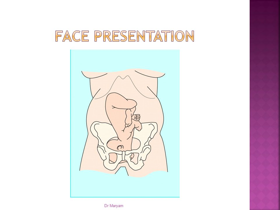 Face presentation Dr Maryam