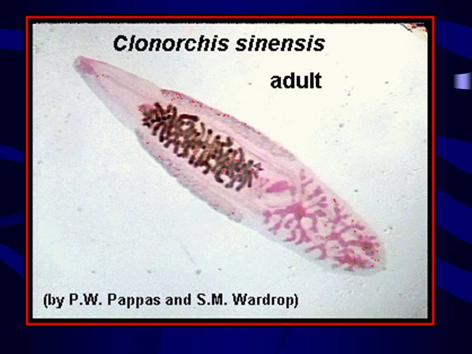Clonorchis sinensis, adult, stained whole mount; approximate size = 15 mm. Click here to view a labeled image of this parasite, or here to view a labeled line drawing of this parasite.