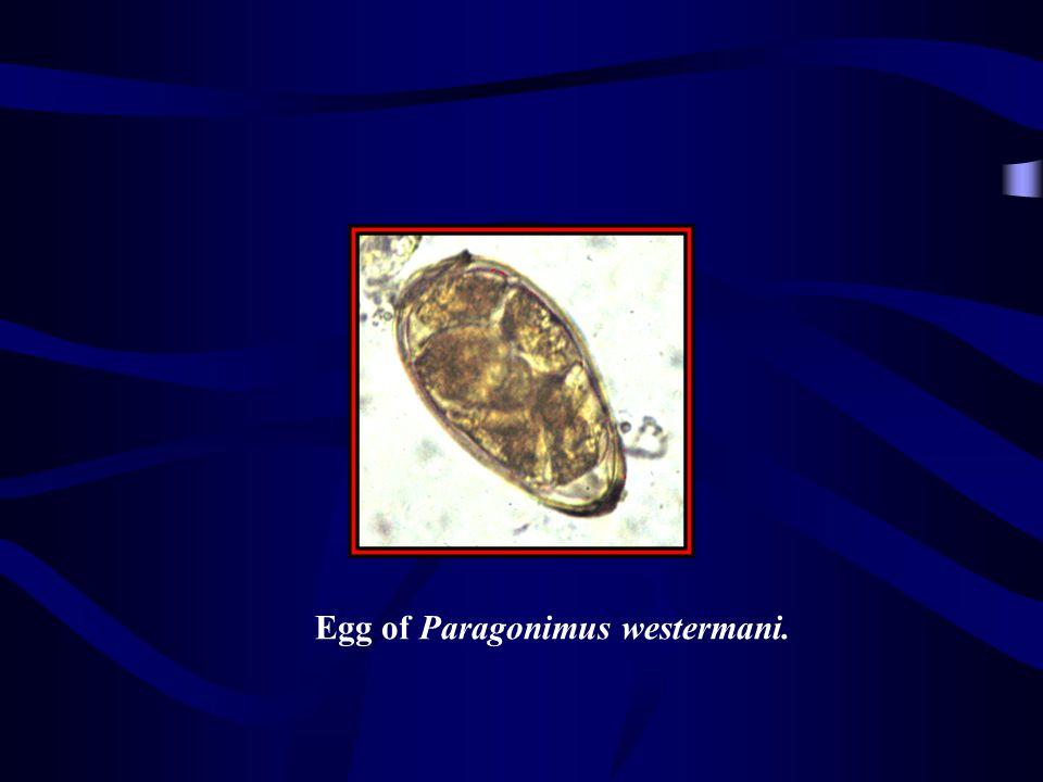 Egg of Paragonimus westermani.