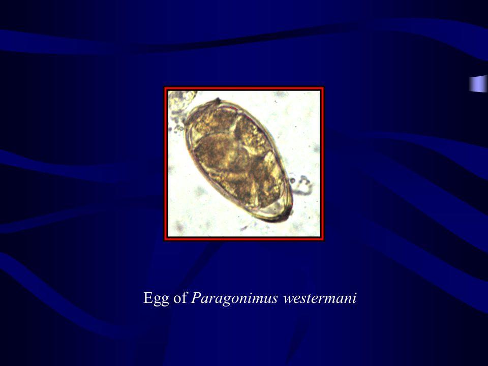 Egg of Paragonimus westermani