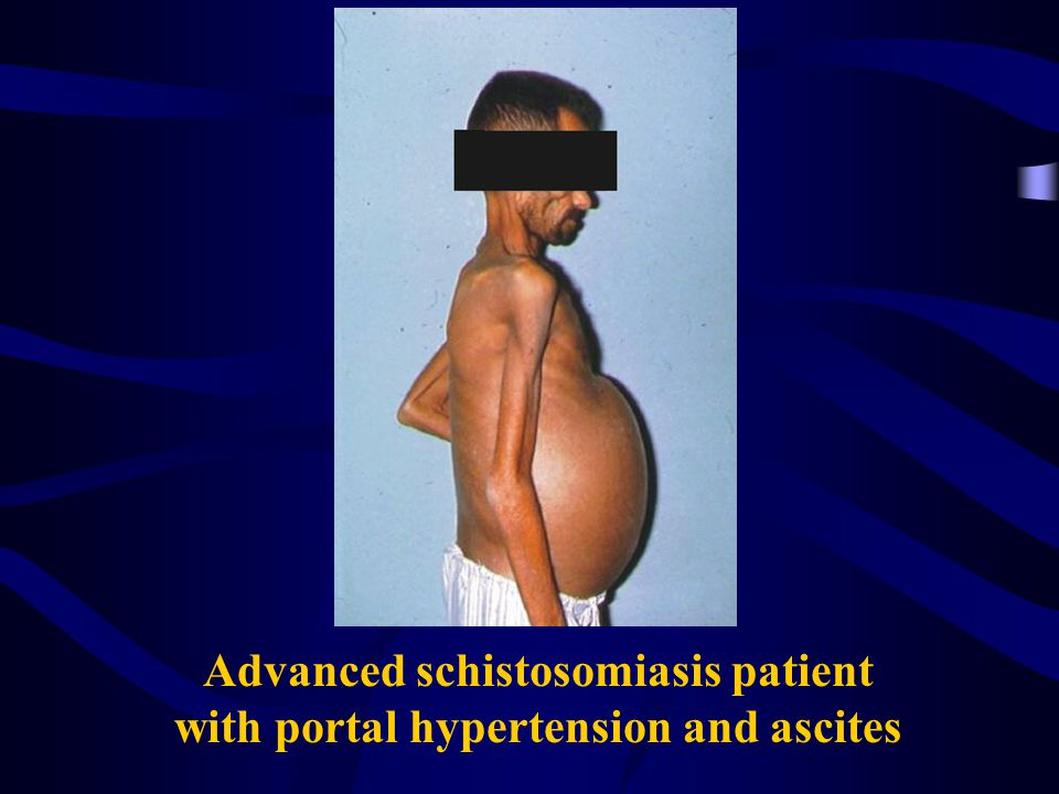 Advanced schistosomiasis patient with portal hypertension and ascites