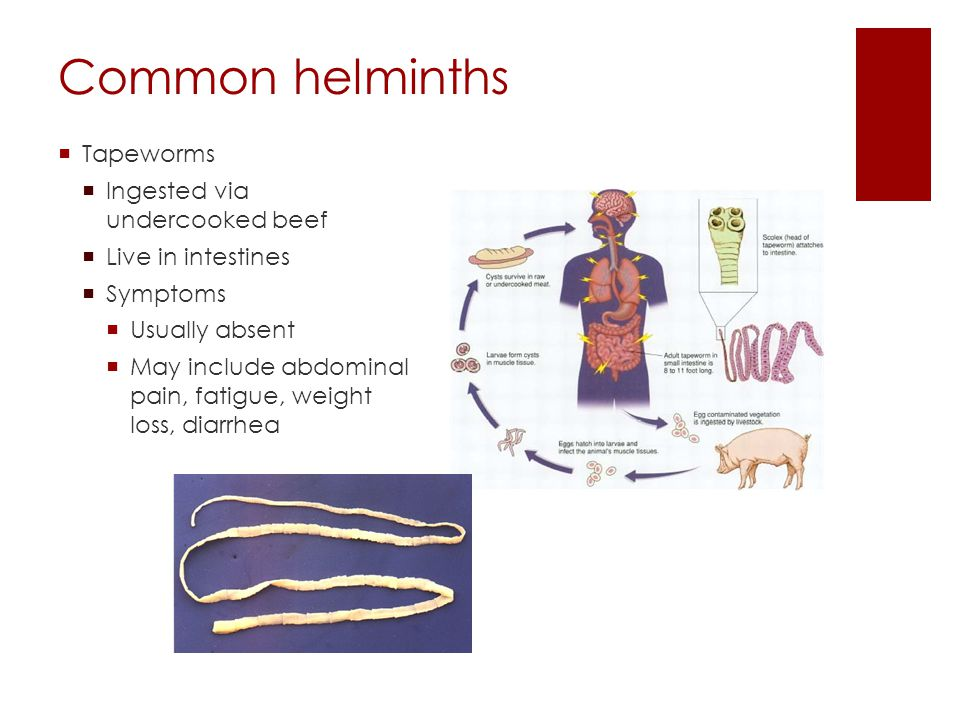 Common helminths Tapeworms Ingested via undercooked beef