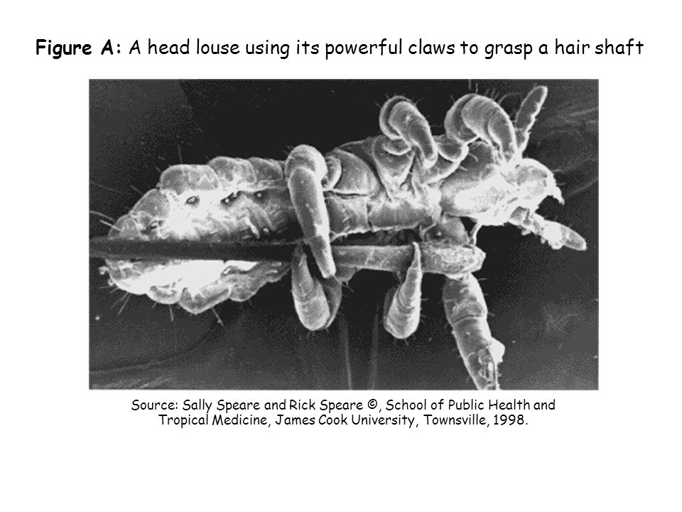 Figure A: A head louse using its powerful claws to grasp a hair shaft
