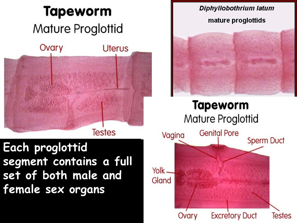 Each proglottid segment contains a full set of both male and female sex organs