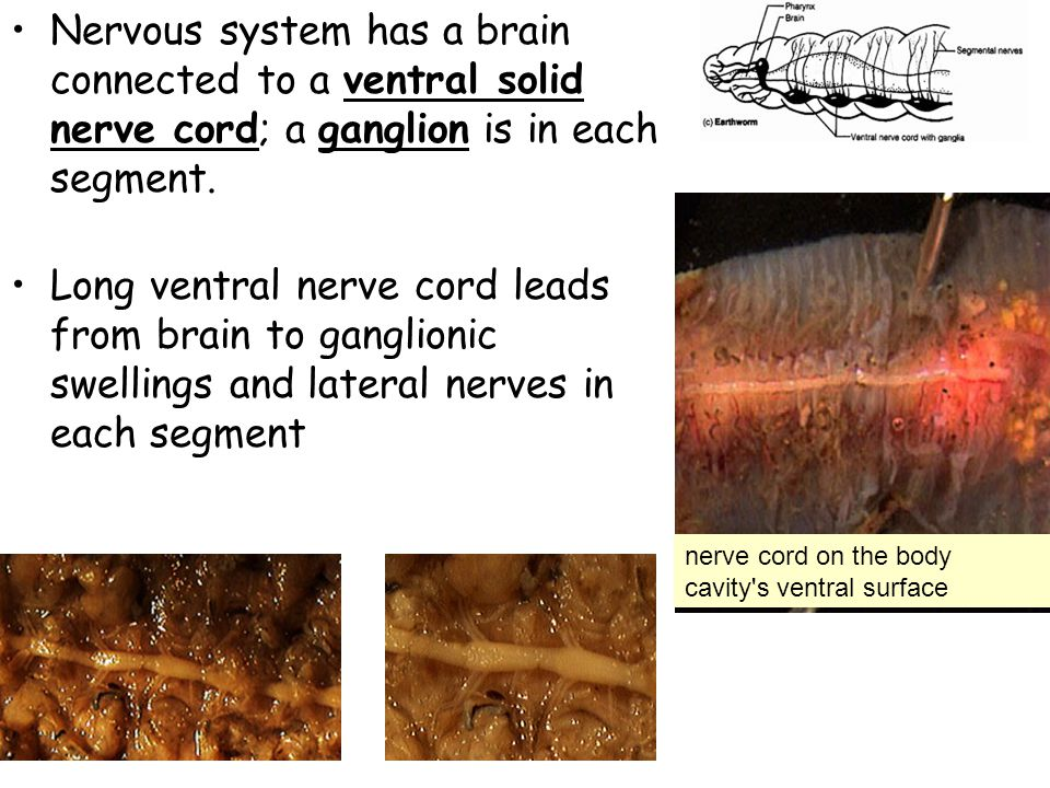 Nervous system has a brain connected to a ventral solid nerve cord; a ganglion is in each segment.