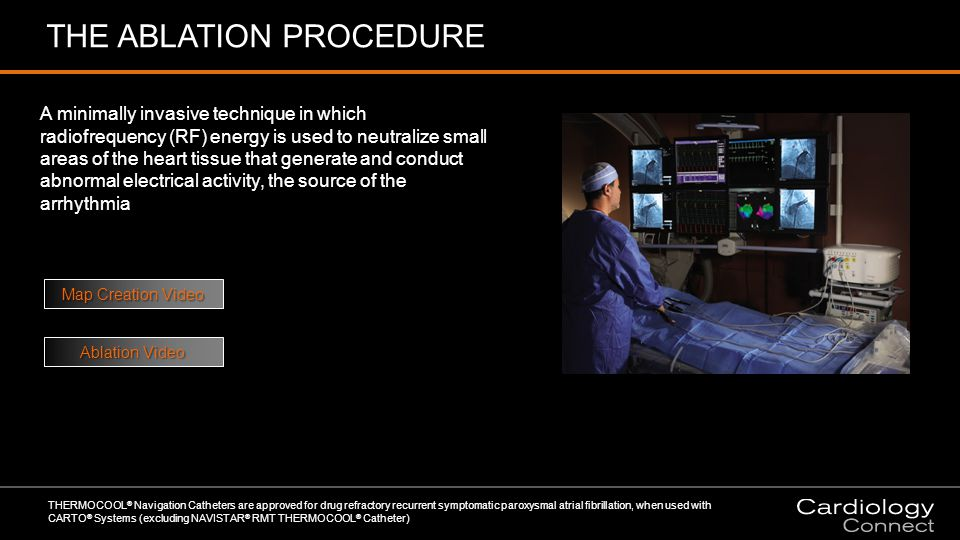 THE ABLATION PROCEDURE