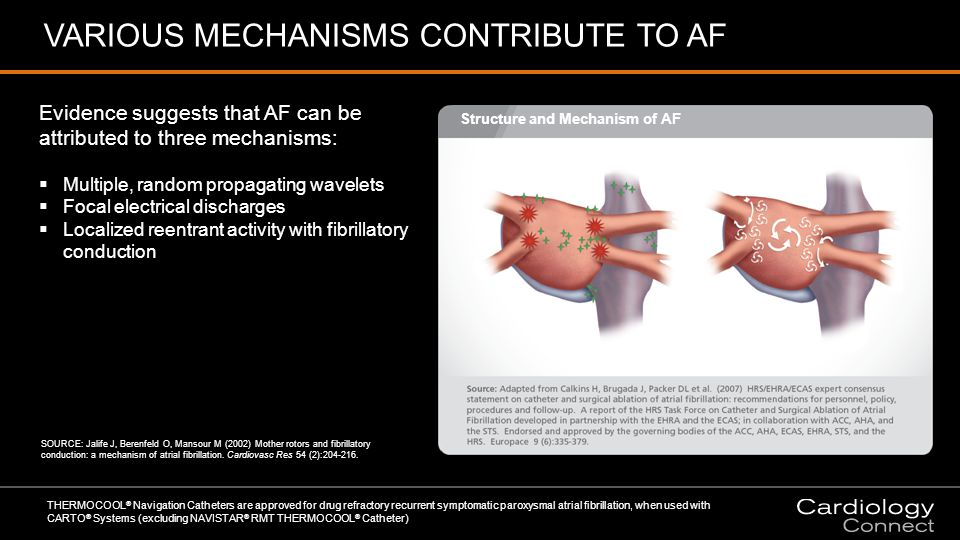 VARIOUS MECHANISMS CONTRIBUTE TO AF