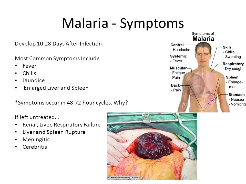Malaria - Symptoms Develop 10-28 Days After Infection