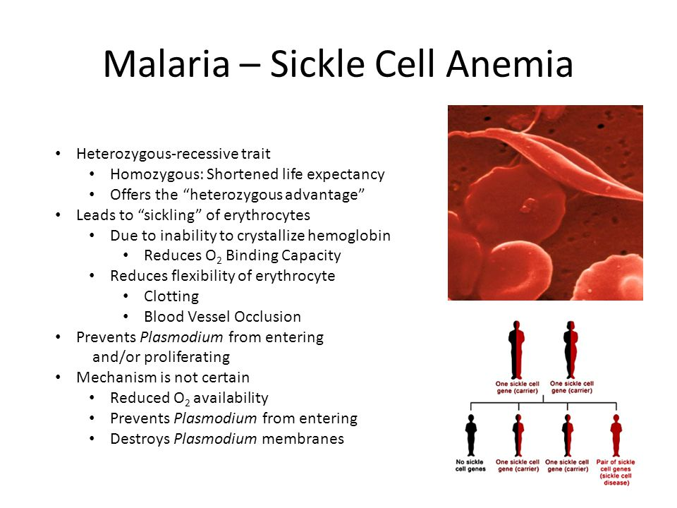 Malaria – Sickle Cell Anemia