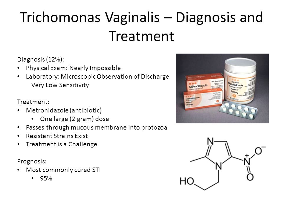 Trichomonas Vaginalis – Diagnosis and Treatment