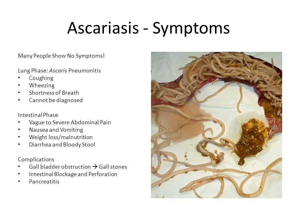 Ascariasis - Symptoms Many People Show No Symptoms!