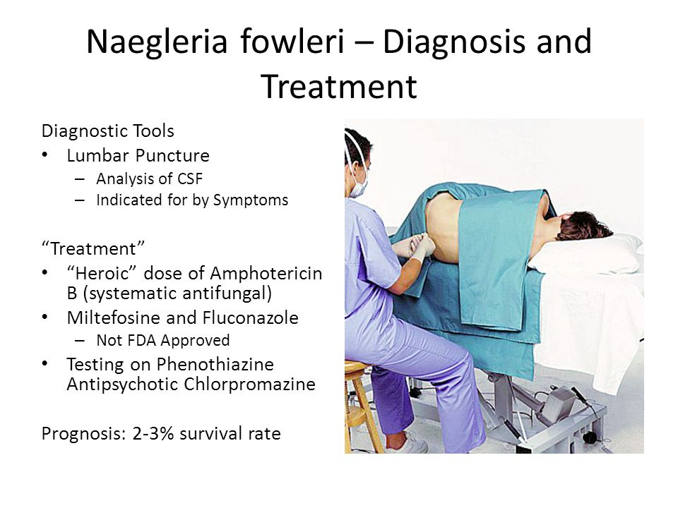 Naegleria fowleri – Diagnosis and Treatment