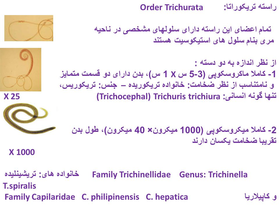 راسته تریکوراتا: Order Trichurata