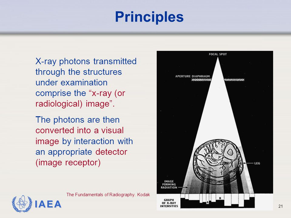 Principles X-ray photons transmitted through the structures under examination comprise the x-ray (or radiological) image .
