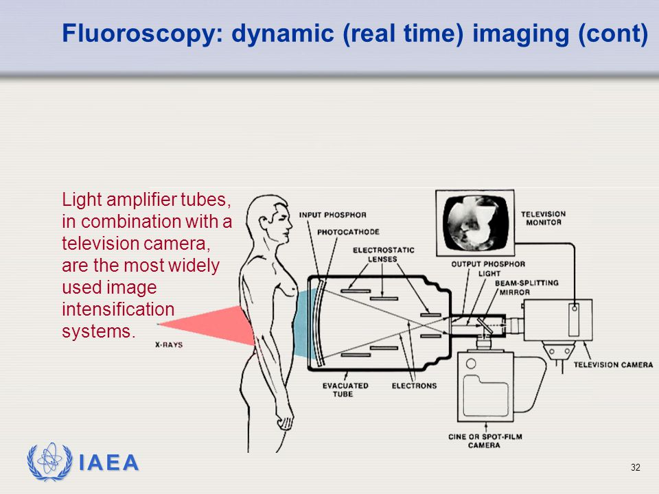 Fluoroscopy: dynamic (real time) imaging (cont)