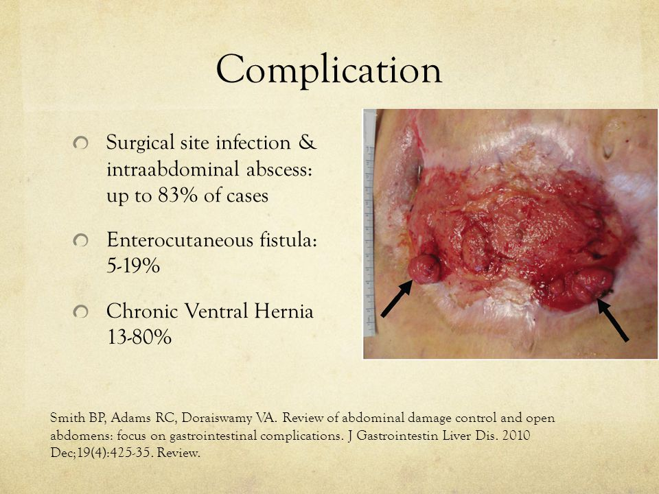 Complication Surgical site infection & intraabdominal abscess: up to 83% of cases. Enterocutaneous fistula: 5-19%