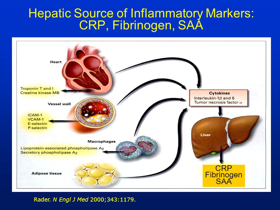 Hepatic Source of Inflammatory Markers: CRP, Fibrinogen, SAA
