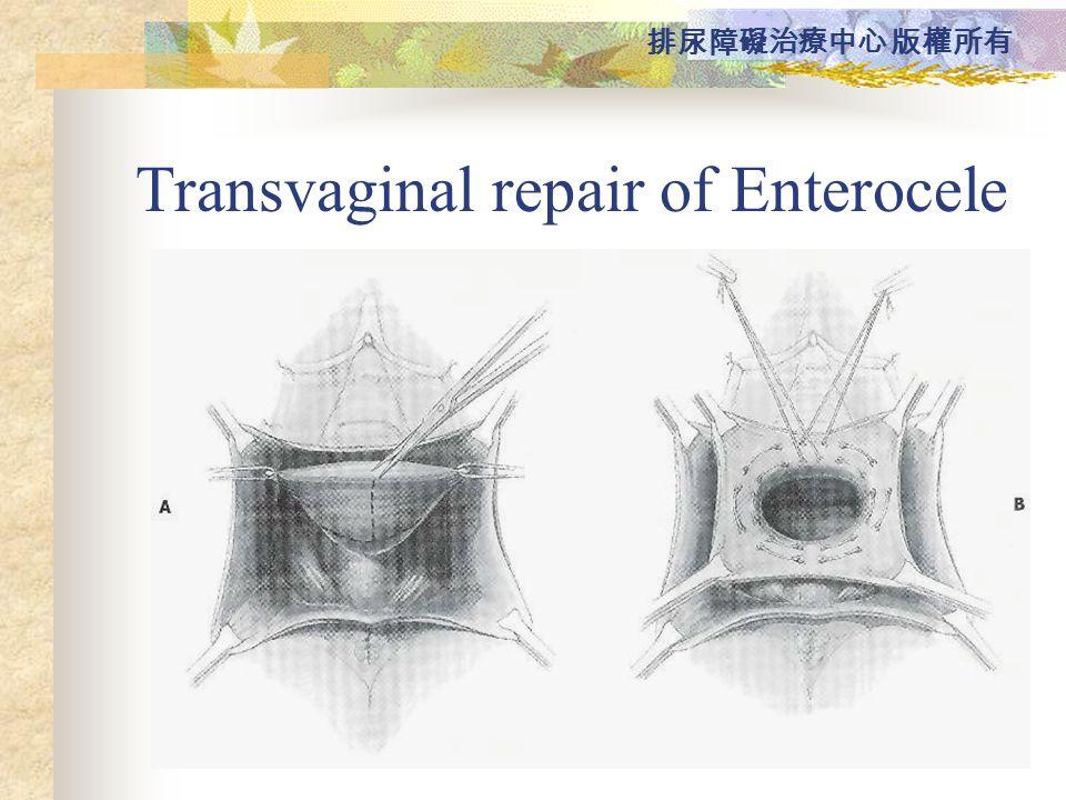Transvaginal repair of Enterocele