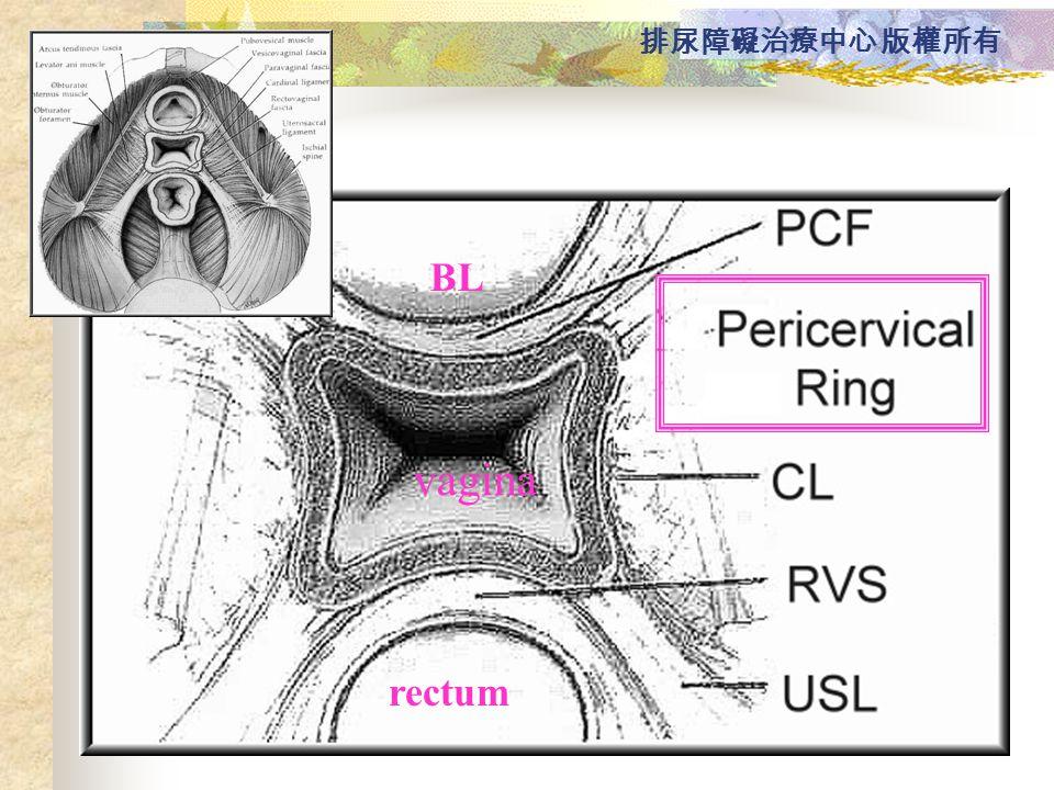 BL vagina rectum