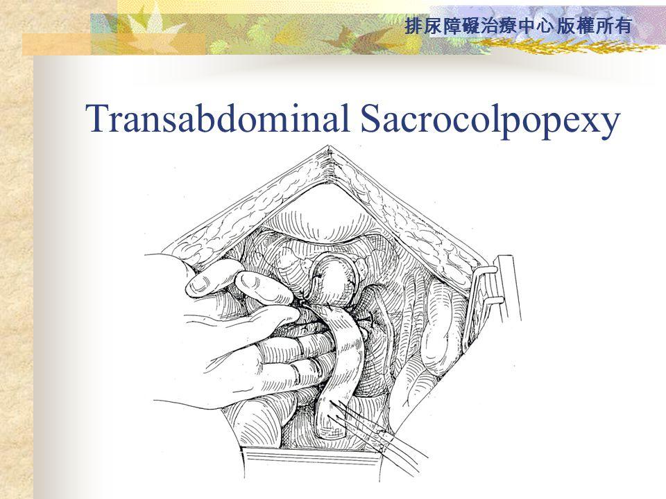 Transabdominal Sacrocolpopexy