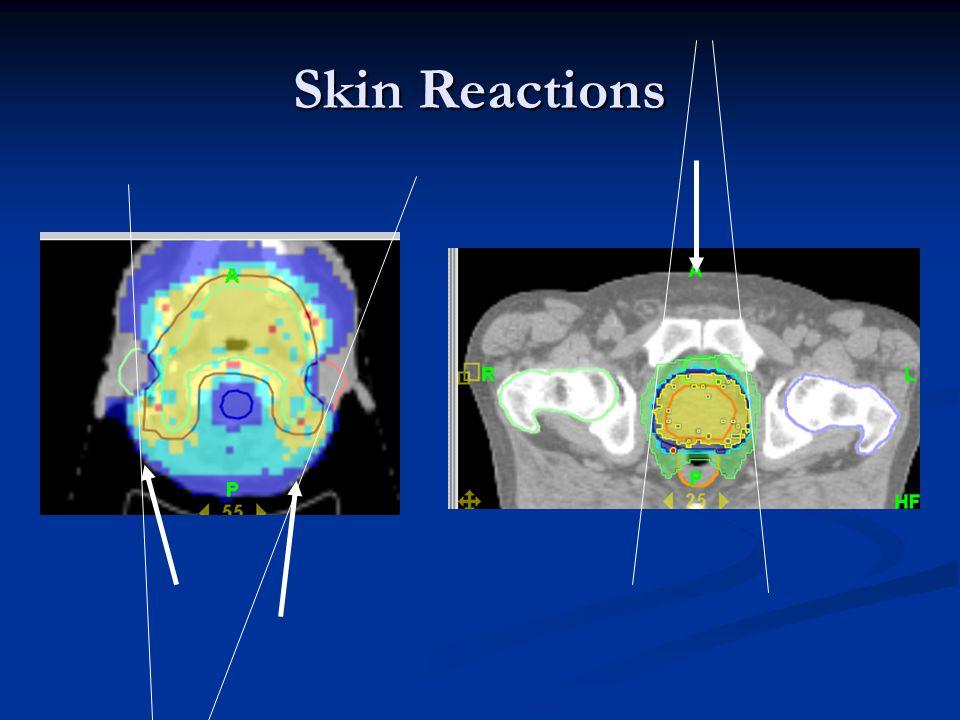 Skin Reactions