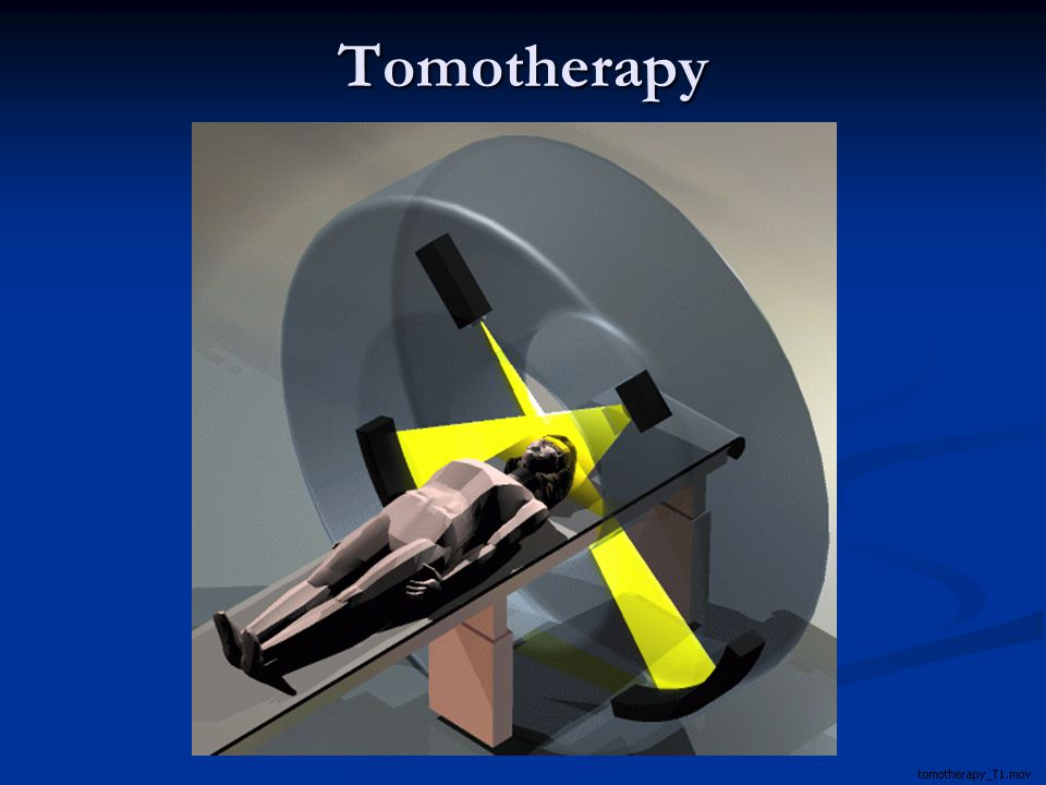 Tomotherapy for kidney cancer
