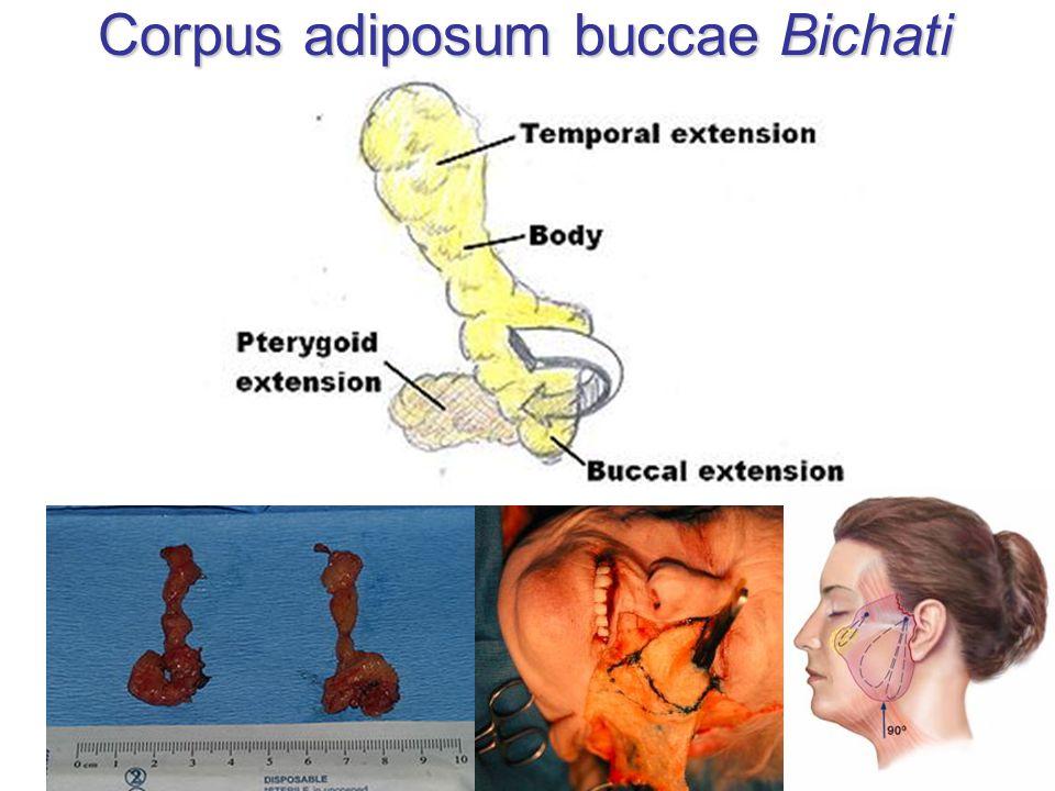 Corpus adiposum buccae Bichati