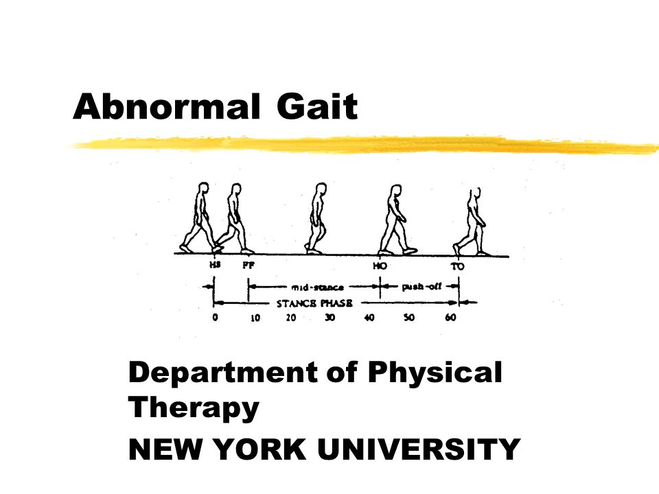 Department of Physical Therapy NEW YORK UNIVERSITY