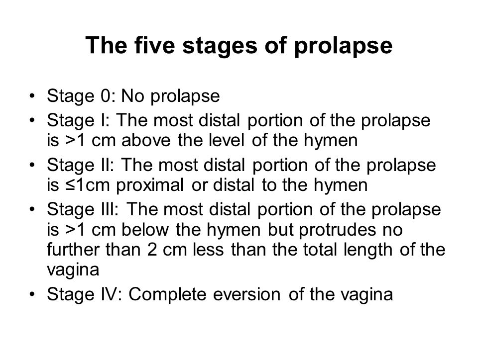 The five stages of prolapse