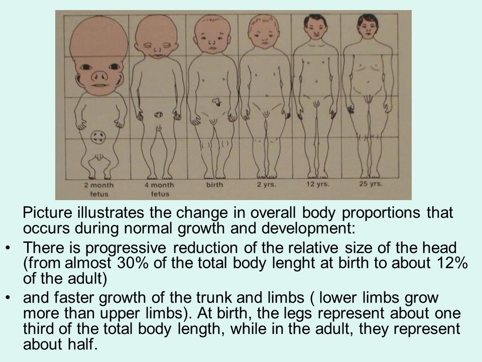 Picture illustrates the change in overall body proportions that occurs during normal growth and development: