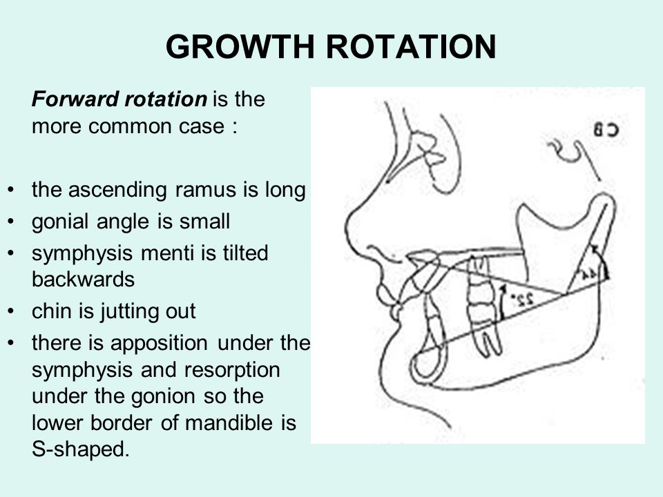 GROWTH ROTATION Forward rotation is the more common case :