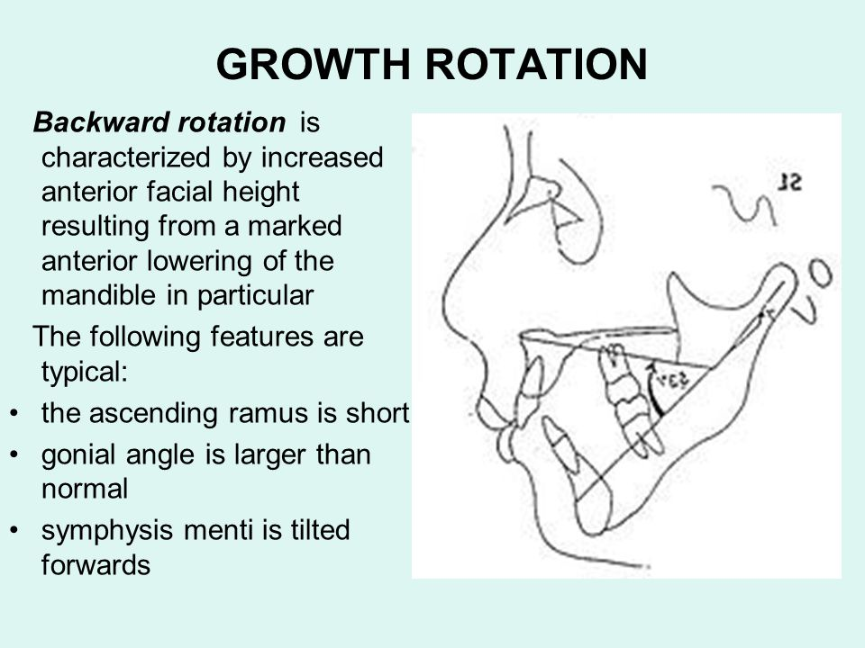 GROWTH ROTATION