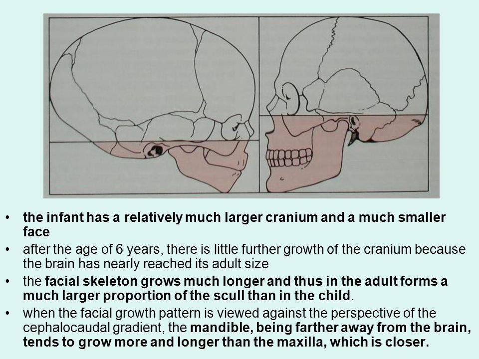 the infant has a relatively much larger cranium and a much smaller face