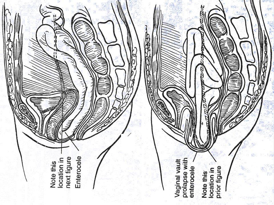 ureter ureter