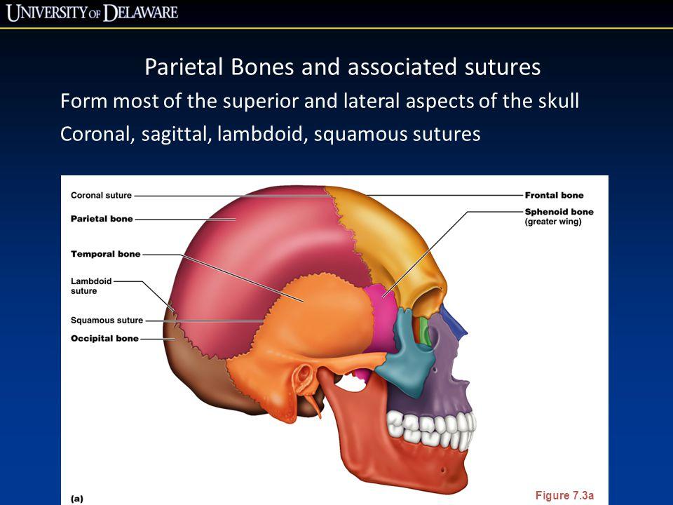 Parietal Bones and associated sutures
