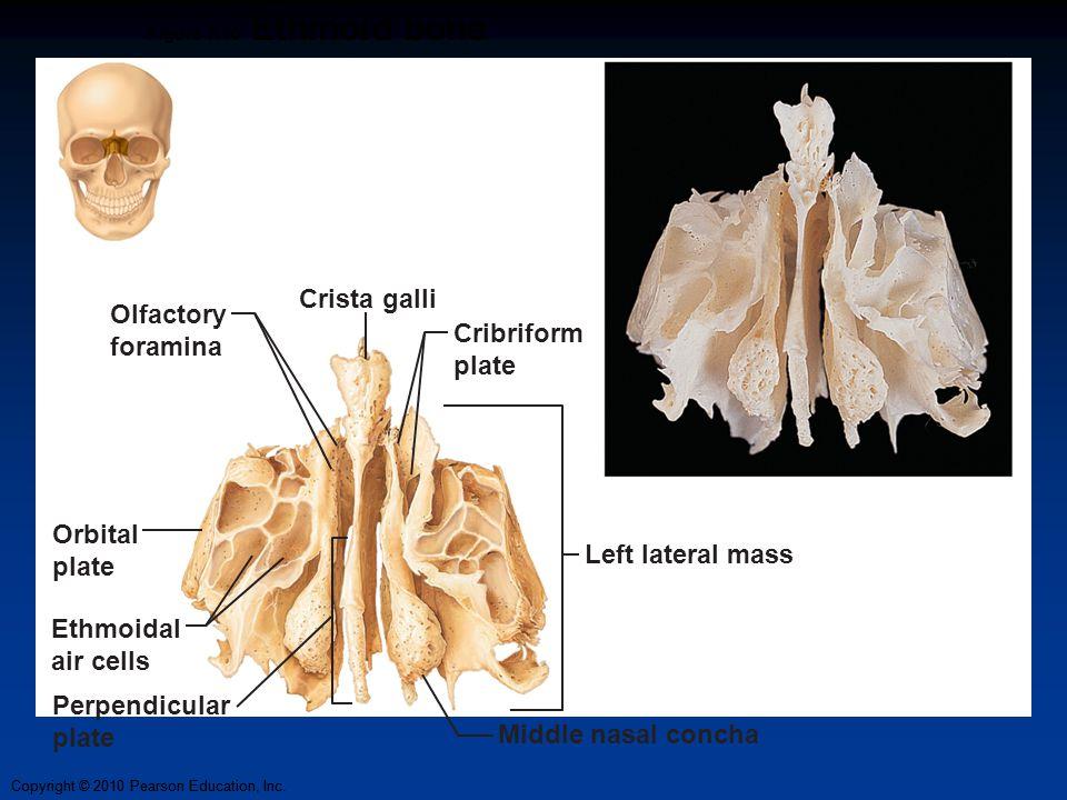 Crista galli Olfactory foramina Cribriform plate Orbital plate