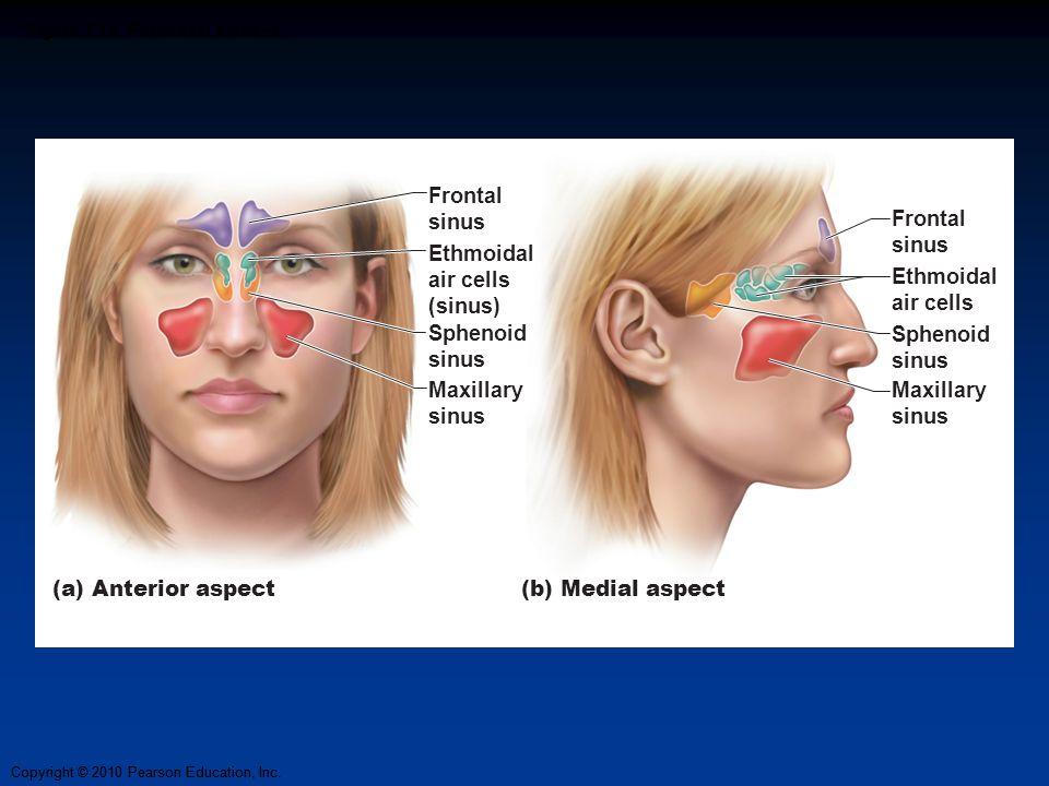 Figure 7.15 Paranasal sinuses.