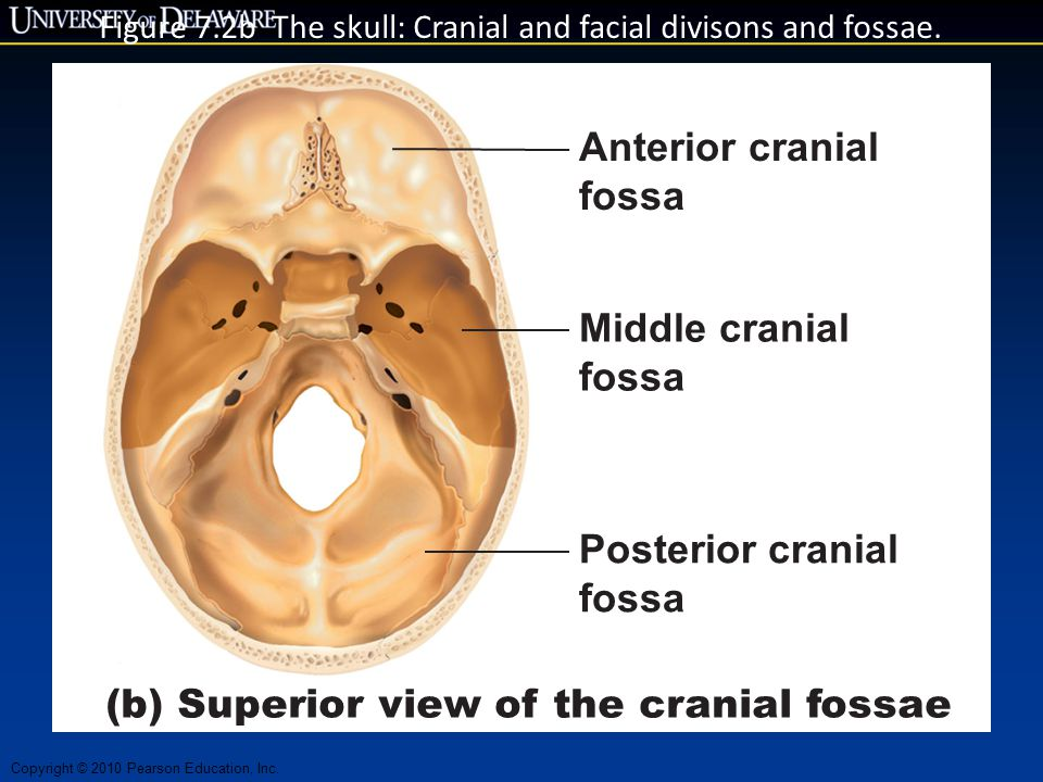 Figure 7.2b The skull: Cranial and facial divisons and fossae.