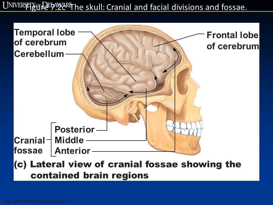 Figure 7.2c The skull: Cranial and facial divisions and fossae.