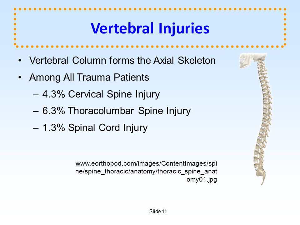 Vertebral Injuries Vertebral Column forms the Axial Skeleton